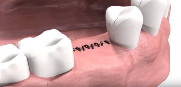 Как не допустить расхождения швов после имплантации зубов