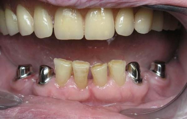 Телескопические протезы зубные на верхнюю челюсть отзывы