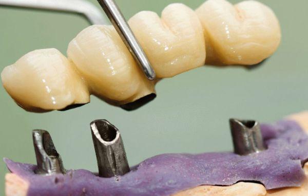 Как устроены телескопические зубные протезы
