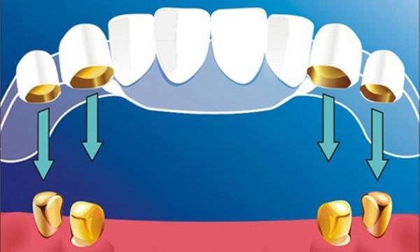Телескопические зубные протезы отзывы