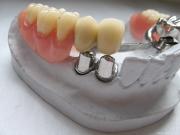 Особенности телескопических зубных протезов