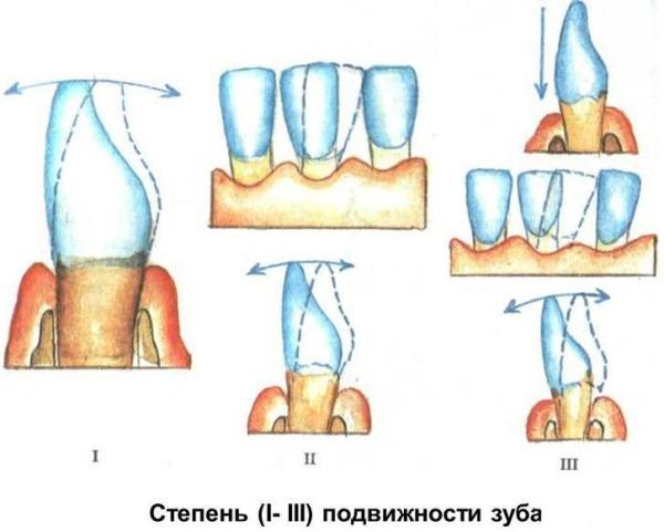 Определение степени подвижности зуба при пародонтите