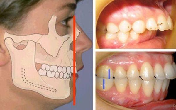 Аппарат персина для мезиальной окклюзии в ортодонтии