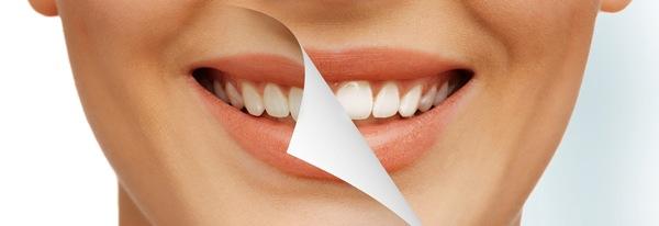 Плюсы и минусы систем отбеливания зубов Bleach N Smile