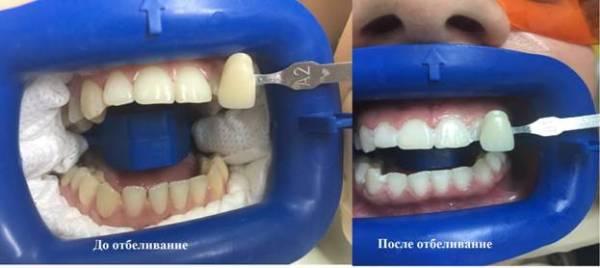 На сколько тонов отбеливаются зубы