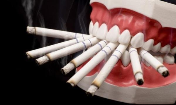 Доброкачественные опухоли слизистой оболочки полости рта