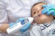 Электроодонтометрия в стоматологии