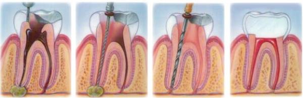 Как удаляют кисту корня зуба