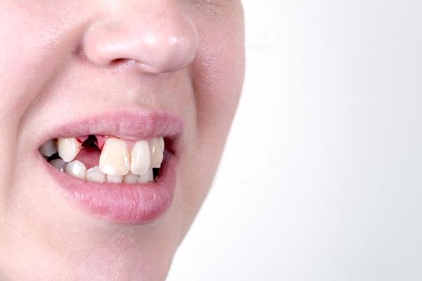 Неоконус аналоги в стоматологии