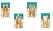 Обтурация корневых каналов гуттаперчей