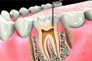 Распломбирование каналов зуба