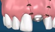 Снятие швов после имплантации зубов