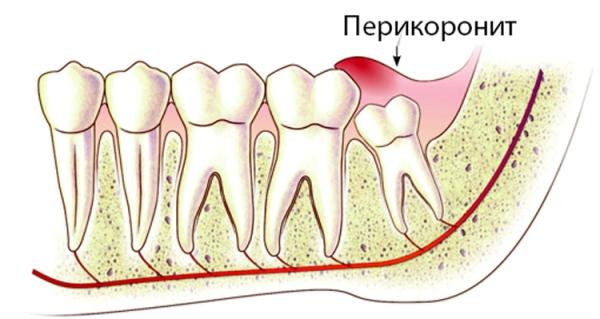 Симптомы и лечение инфекции зуба