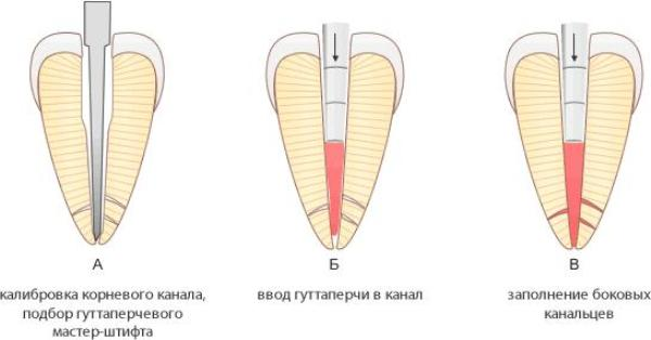 Временная обтурация корневых каналов downpack даунпэк