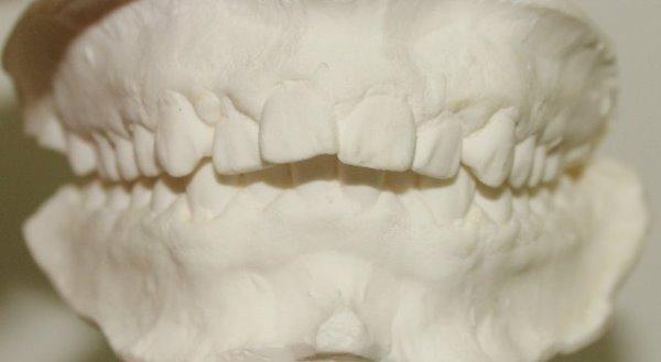 Дистализация моляров верхней челюсти