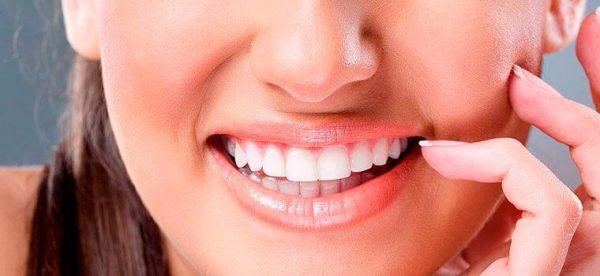 Как работает метод химического отбеливания зубов