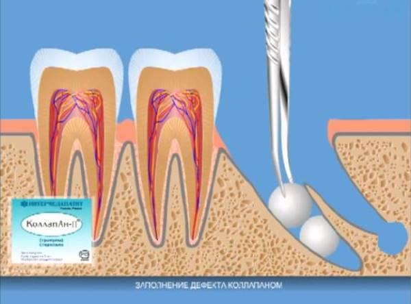 Коллапан гранулы стоматология