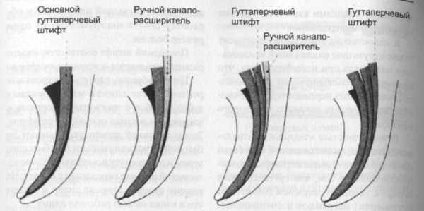 Пломбирование корневых каналов методом латеральной конденсации