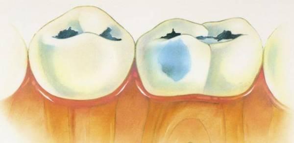 вторичный кариес депульпированного зуба