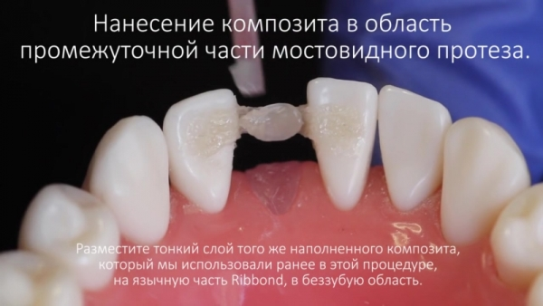 Восстановление зуба лента риббонд