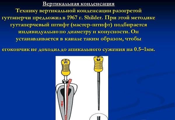 Метод вертикальной конденсации горячей гуттаперчи