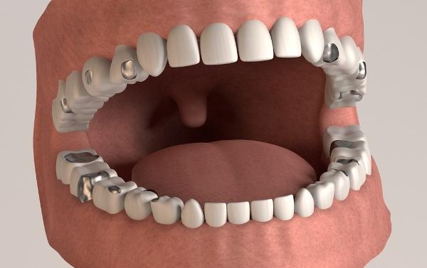 Пломбирование зубов в стоматологии амальгамой