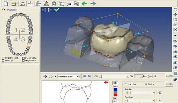 Использование Cad Cam системы в стоматологии