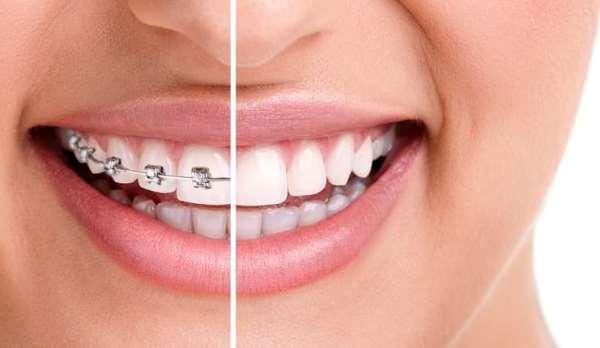 Цифровой дизайн улыбки виды