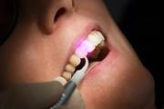 Особенности лечения зубов лазером