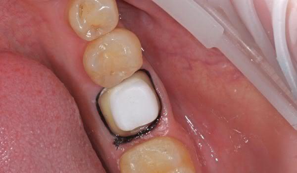 Металлическая вкладка в зуб под коронку