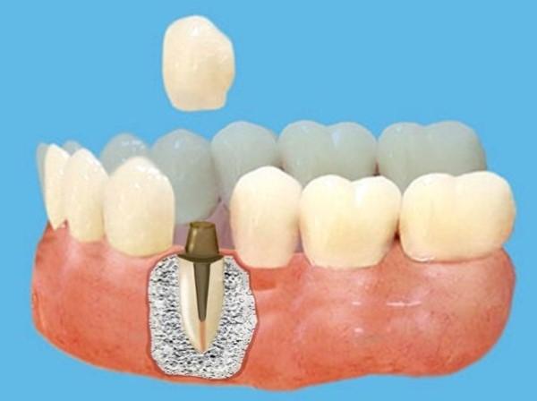 Показания к постановке металлической вкладки в зуб