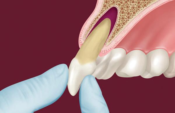 Лечение травм зубов у взрослых