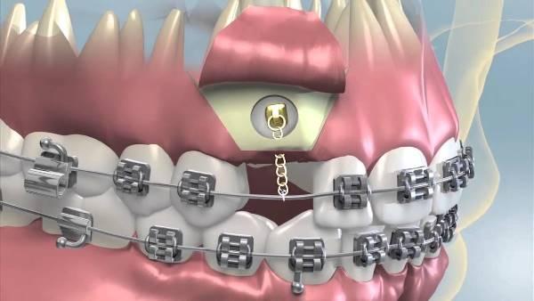 Этапы проведения ортодонтического вытяжения зуба
