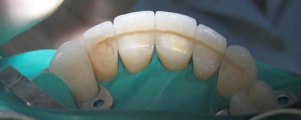 Особенности препарирования зуба под пластмассовую коронку