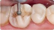Особенности препарирования опорных зубов