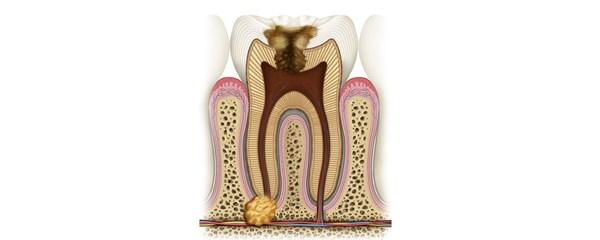 Причины развития апикального периодонтита