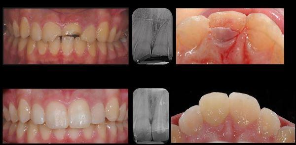 Перелом корня зуба под коронкой