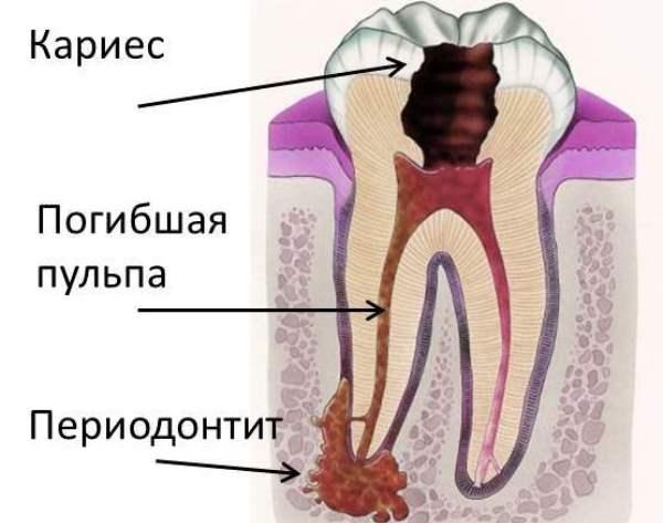 Острый апикальный периодонтит мкб 10