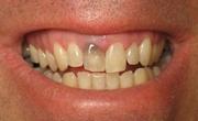 Причины потемнения зуба