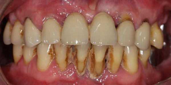 Потемнение зуба у десны у ребенка