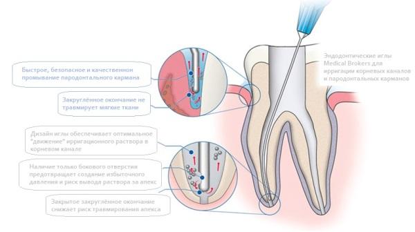 Протокол ирригации корневых каналов при лечении пульпита