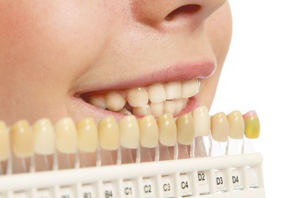 Шкала Вита для точного определения цвета зубов