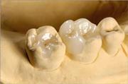 Керамическая вкладка на зуб цена