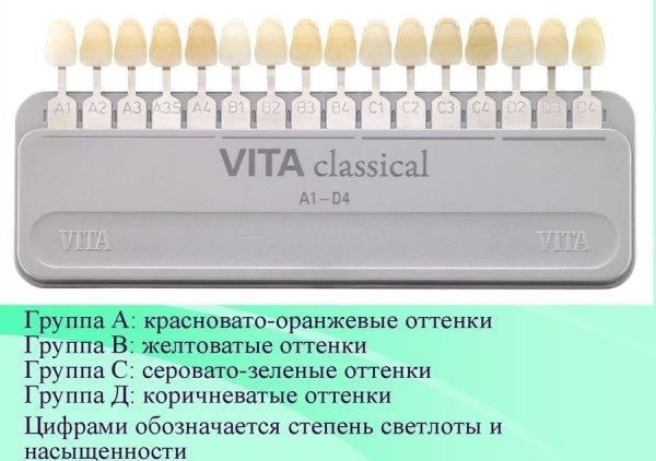 Шкала вита цветов зубов фото