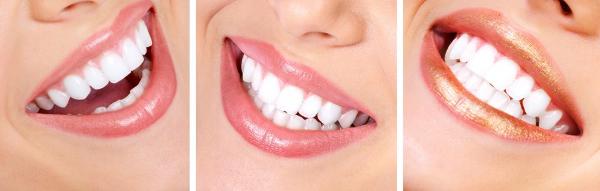 Дизайн улыбки стоматология