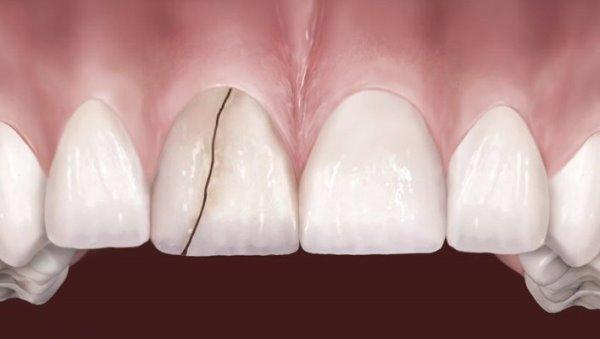 Что делать, если треснул постоянный зуб