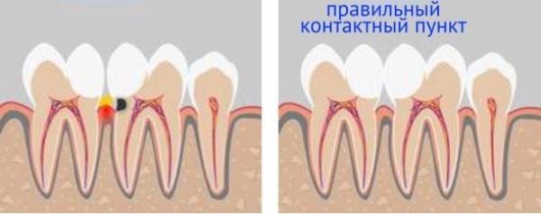 Контактный пункт между зубами