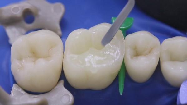 Восстановление контактного пункта зубов