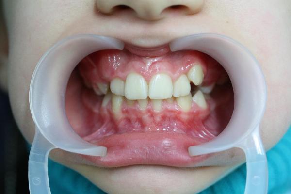Ортодонтическое вытяжение зуба