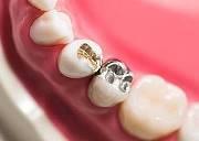 Амальгама в стоматологии применение